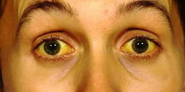 Признаки цирроза печени у мужчин и женщин, лечение.