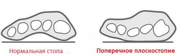 Вид стопы при поперечном плоскостопии