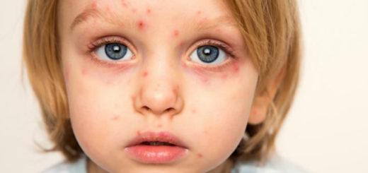 ветряная оспа у детей симптомы, лечение и профилактика