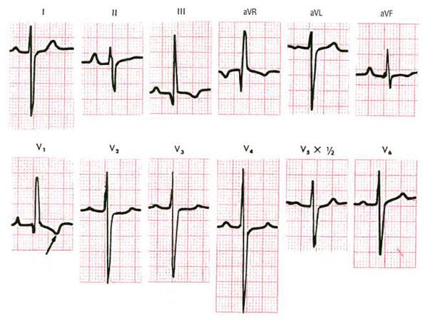 Гипертрофия правого желудочка сердца
