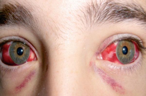 Кровоизлияния в склеры глаз
