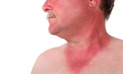 Симптомы Геморрагической лихорадки с почечным синдромом