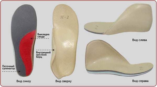 Современные стельки при плоскостопии