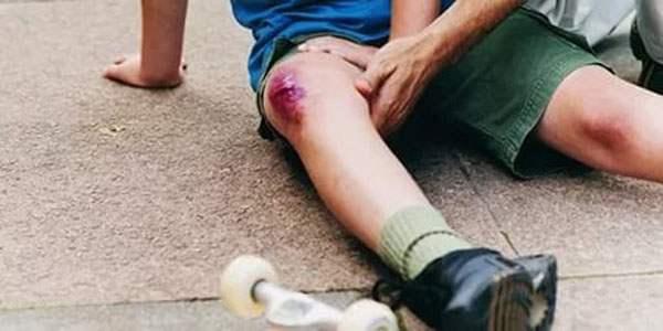 Трамва колена с нарушением кожных покровов