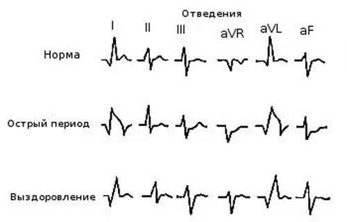 Зубцы кардиограммы при инфаркте миокарда