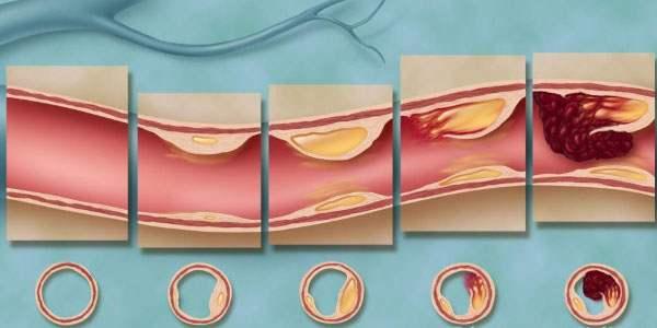 Стадии отложения холестерина в сосудах