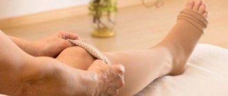 Тромбоз глубоких вен нижних конечностей симптомы, лечение