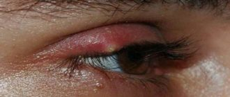 Блефарит симптомы и лечение у взрослых