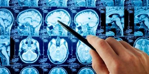 развитие аномалий мозга