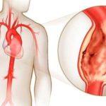 Аневризма аорты сердца: причины, симптомы и лечение
