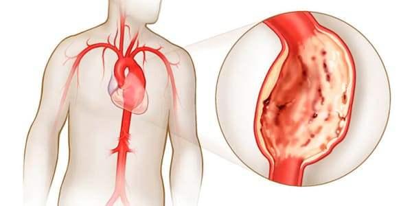 Аневризма аорты сердца причины, симптомы и лечение