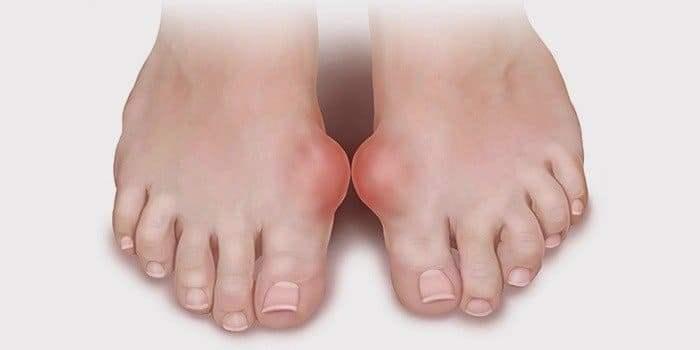 лечение подагры локтевых суставов
