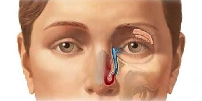 Система отведения слезной жидкости из глаза