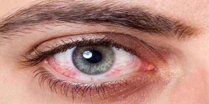 Воспаление оболочки склеры глаза