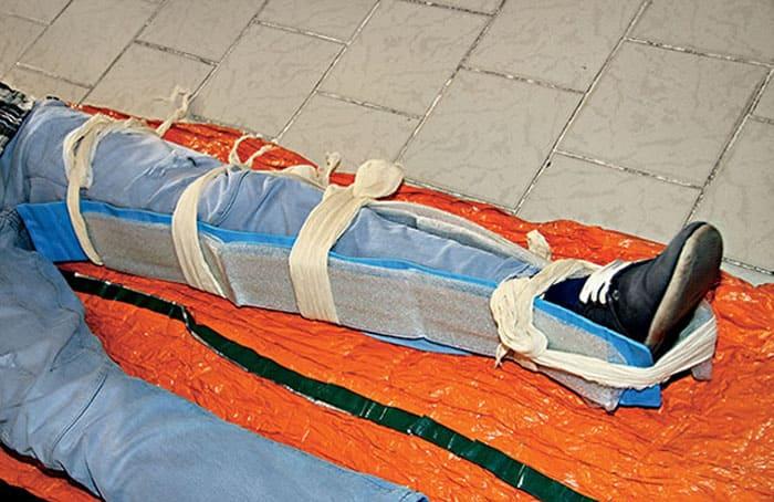Фиксация колена и ноги для предотвращения появления дополнительных повреждений