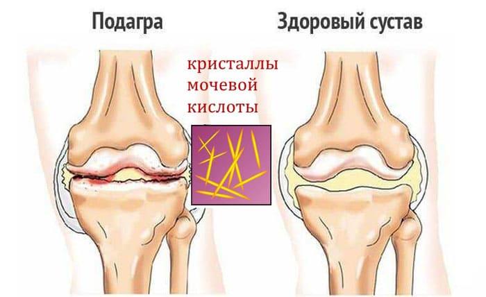 Изменения возникающие в суставе колена при появлении высокой концентрации мочевой кислоты и выпадении ее солей в виде кристаллов.