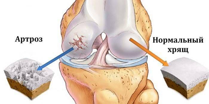 Схематическое изображение повреждений хряща возникающего при артрозе сустава