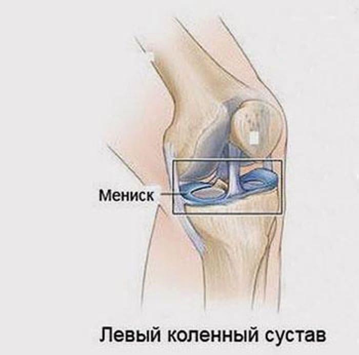 Схематическое изображение расположения менисков в коленном суставе