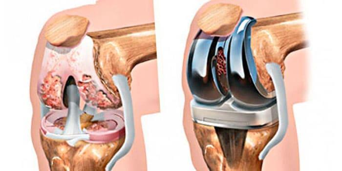 Схематическое изображение трансплантации эндопротеза коленного сустава