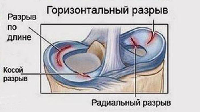 Схематическое изображение видов повреждений менисков колена