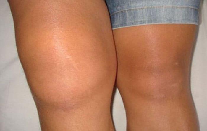 Внешний вид колена при развитии воспаления синовиальной оболочки полости сустава