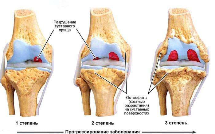 Схематическое изображение стадий развития артроза коленного сустава