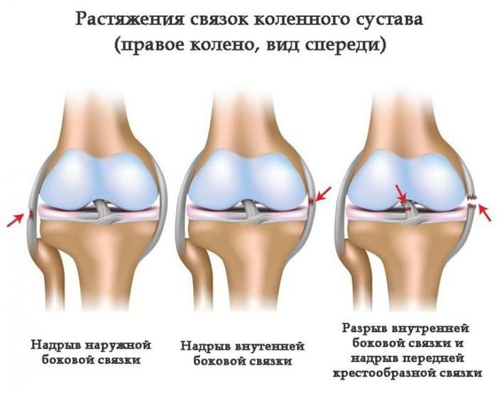 Схематическое изображение различных видов повреждений связок колена