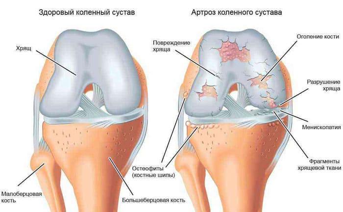 Схематическое изображение одновременного возникновения различных видов повреждений коленного сустава при развития артроза.