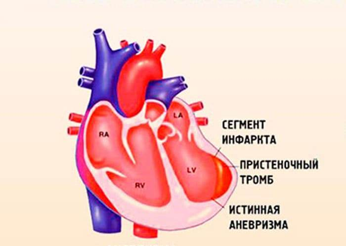 Схематическое изображение аневризмы левого желудочка сердца