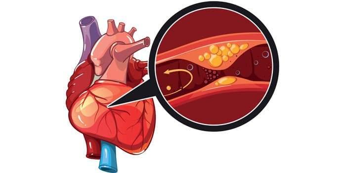 Изображение атеросклеротической бляшки в просвете коронарной артерии сердца