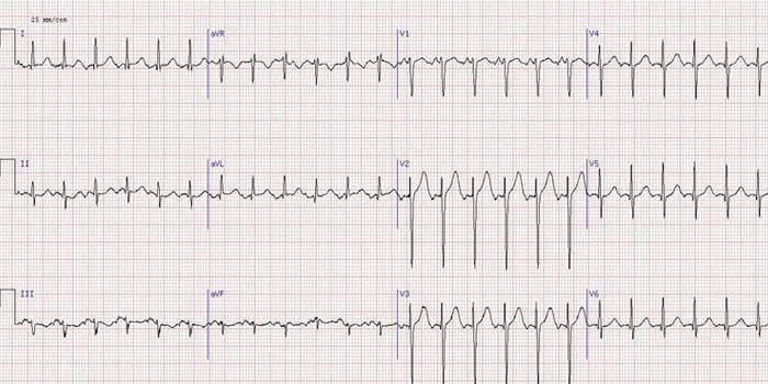 Графическое изображение нарушений в работе сердца