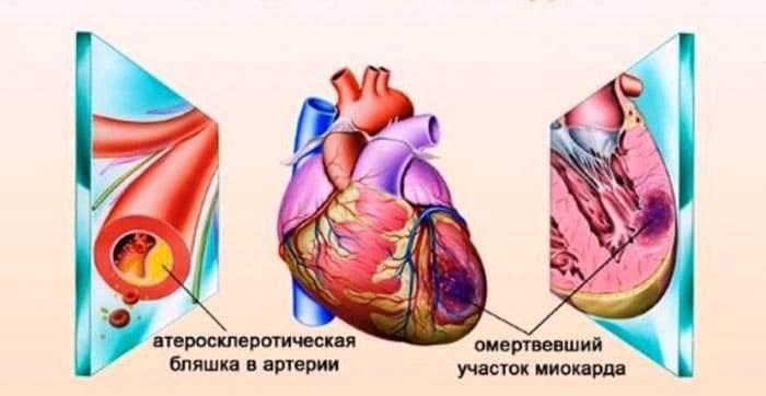 Схематическое изображение омертвевшей мышечной ткани сердца